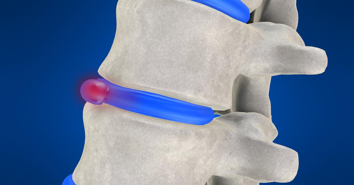 Gadsden, AL non-surgical disc herniation treatment